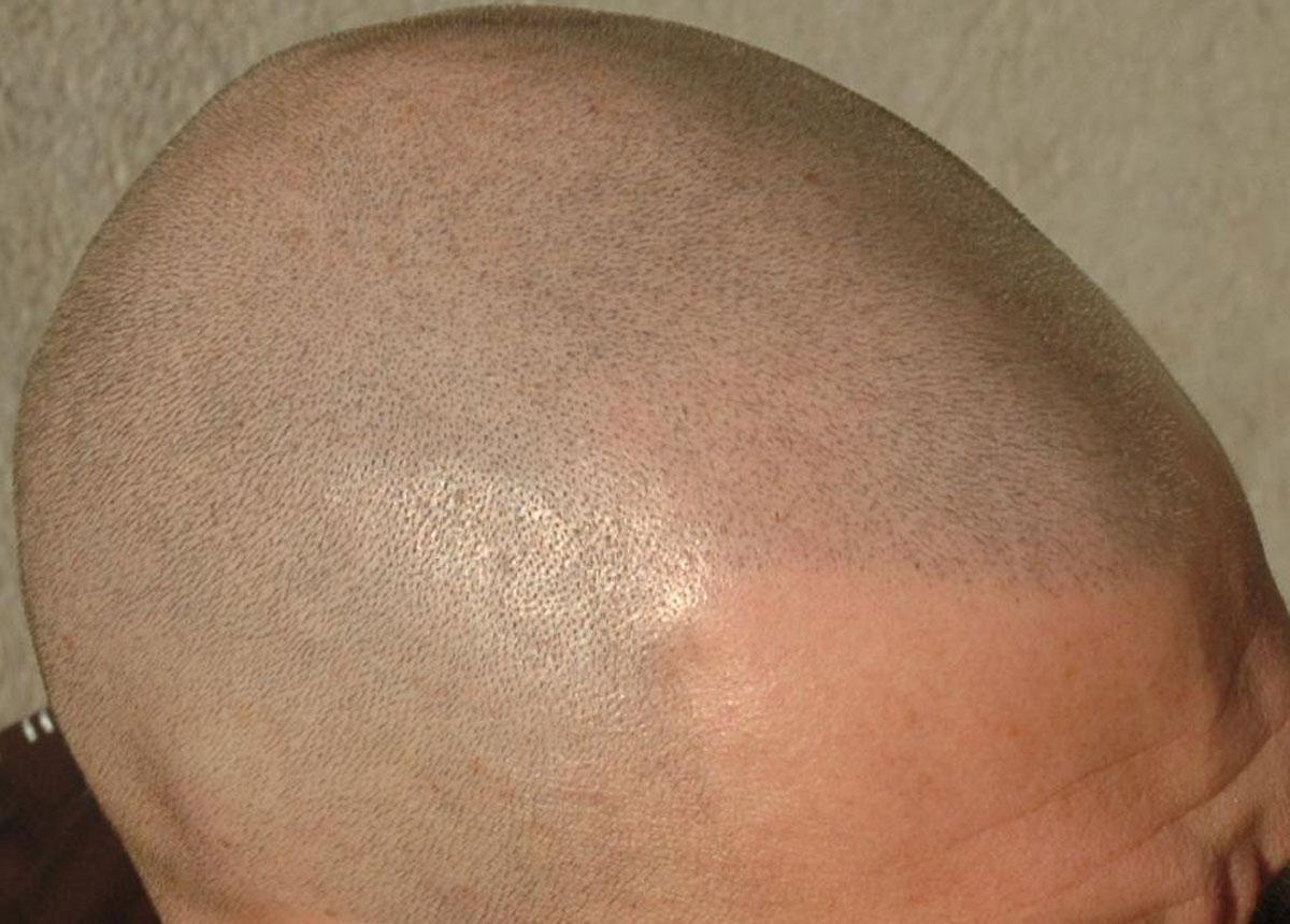 tricopigmentazione-temporanea