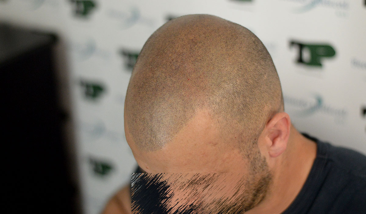 A causa del quale i capelli di malattie possono fortemente abbandonare