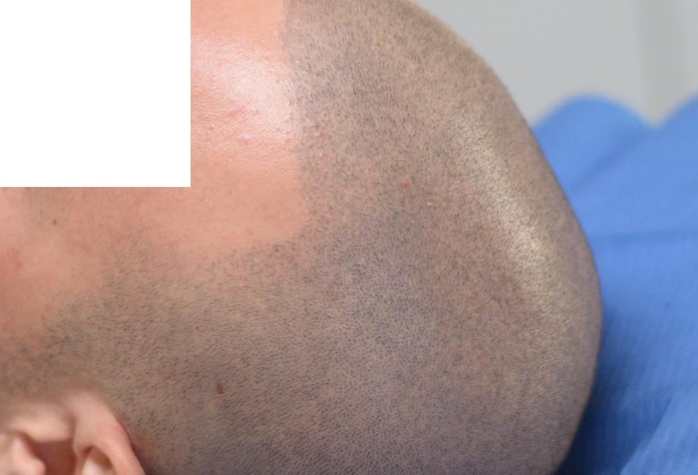 tricopigmentazione-pre-mantenimento11