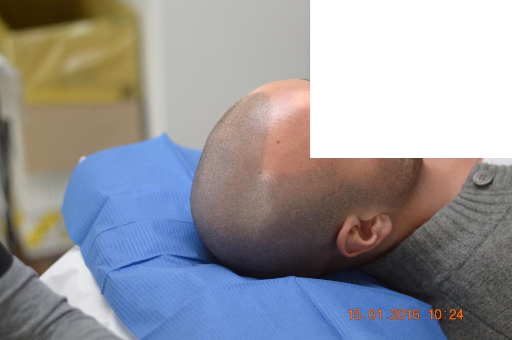 tricopigmentazione-pre-mantenimento5