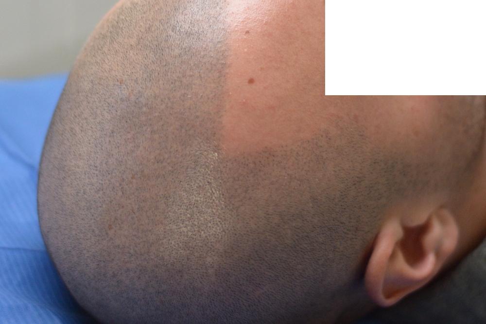 tricopigmentazione-pre-mantenimento6