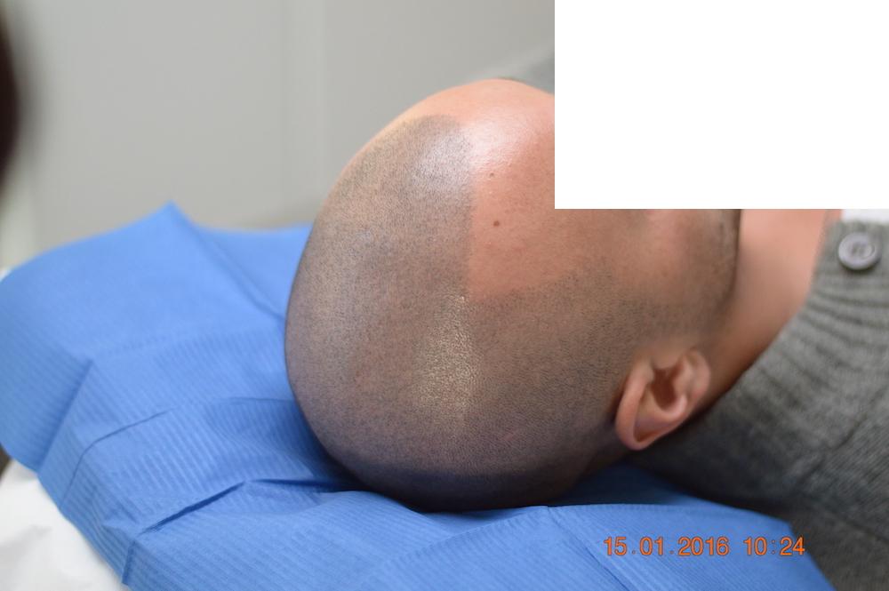 tricopigmentazione-pre-mantenimento7