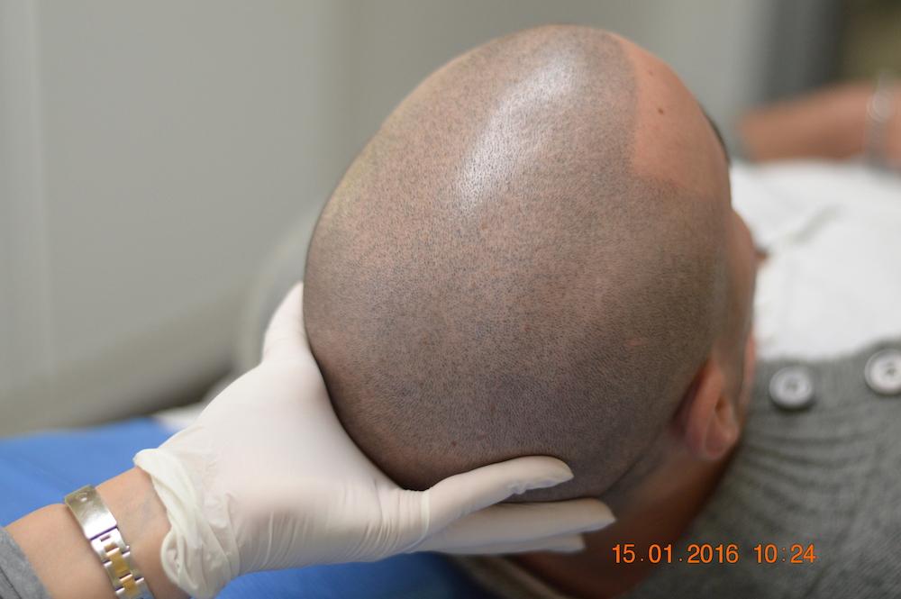 tricopigmentazione-pre-mantenimento9