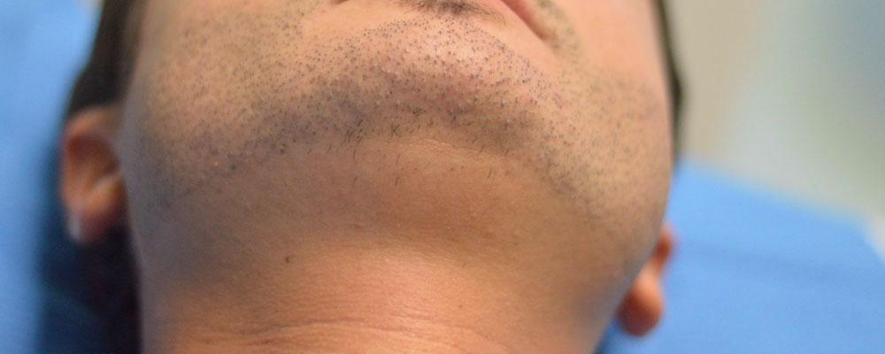 perdita barba