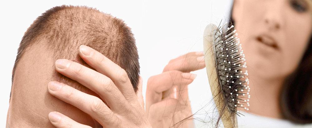 la perdita dei capelli
