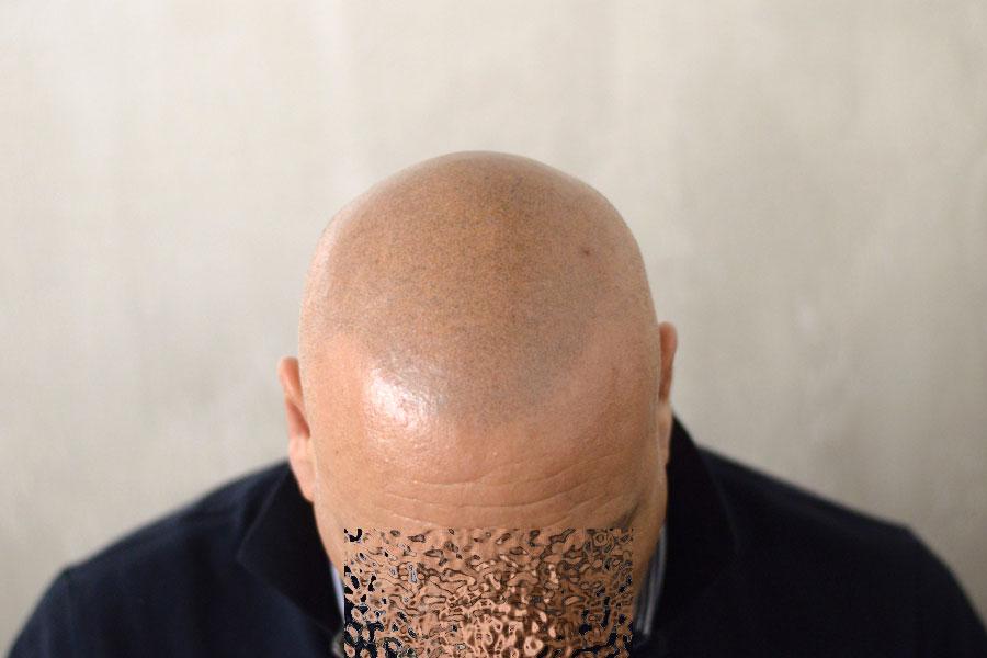 tricopigmentazione permanente o temporanea