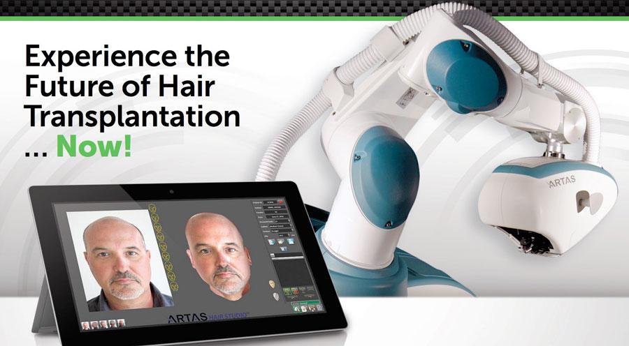 trapianto di capelli con robot