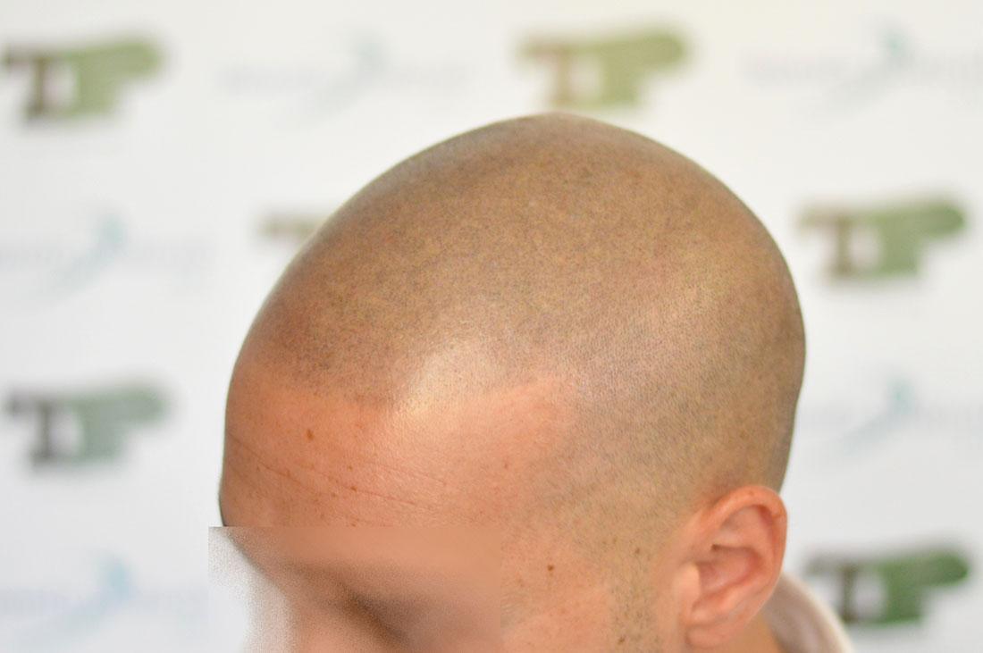 Mezzi da pigmentazione su una faccia