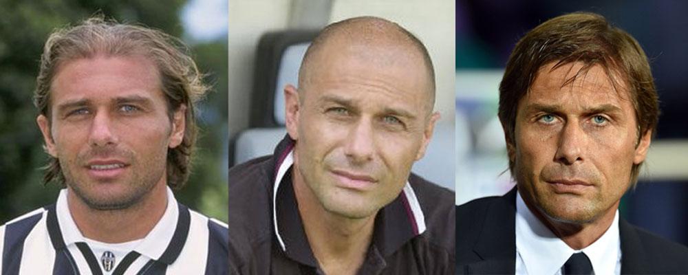 Trapianto di capelli di Antonio Conte | Svelato il mistero.