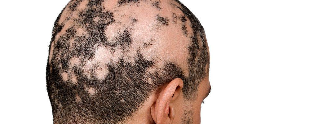 Alopecia Areata, Perdita dei capelli solitamente a chiazze.