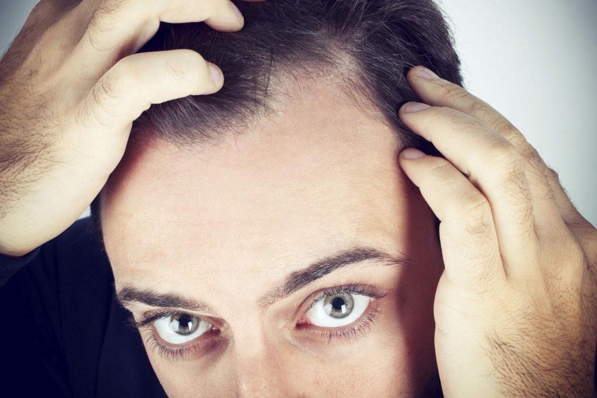 Attaccatura dei capelli irregolare - potrebbe essere solo ...