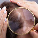 alopecia-donna